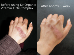 Dr Organic Vitamin E Oil Complex Review Opinion Natural Healing Vegan