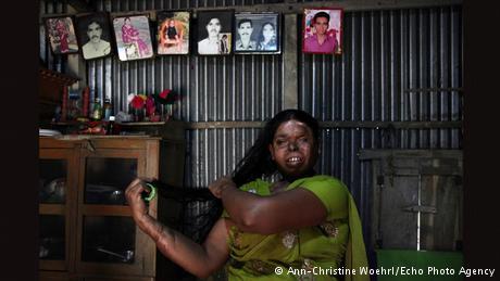 Farida from Bangladesh. Acid Attack Victim Violence Domestic Abuse