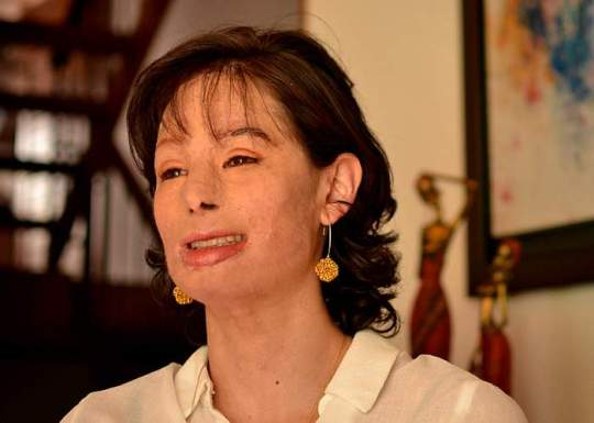 BBC Acid Attack Victims Case Study Survivors