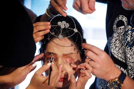 Reshma Quresh Acid Attack Survivor Victim Fashion Model